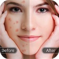 淡斑卸妆软件